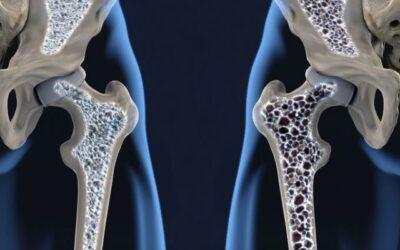APOS pone en marcha la Campaña Anual del Control de la Osteoporosis